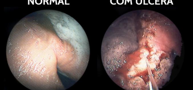 Equinos – úlceras gástricas