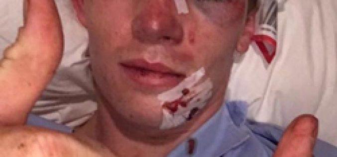 Chris Meehan cai do cavalo e é atropelado pela ambulância…